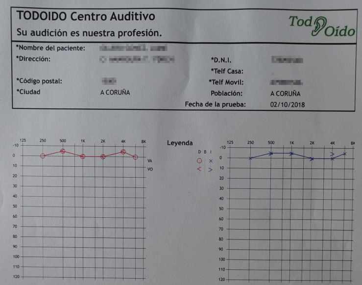 Audiometria